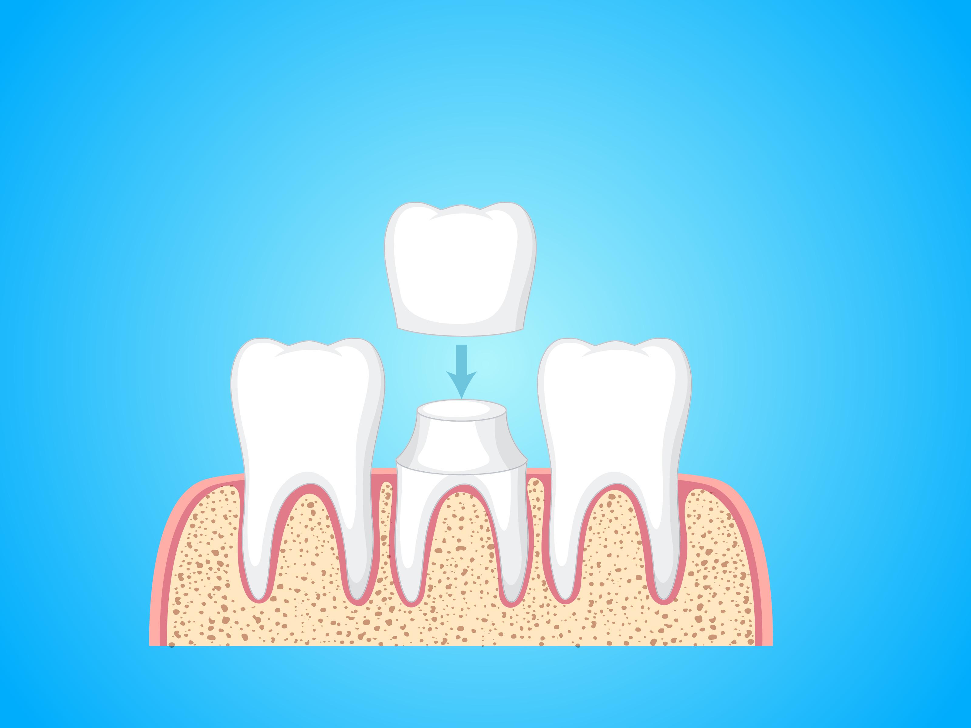 Dental Crowns Brampton