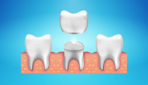 Dental Crowns in Brampton