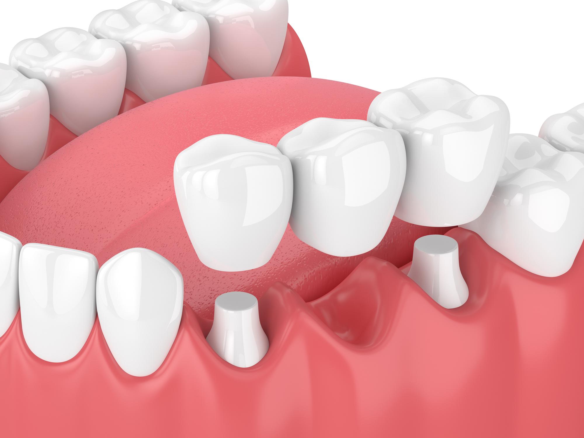 Dental Bridges Brampton