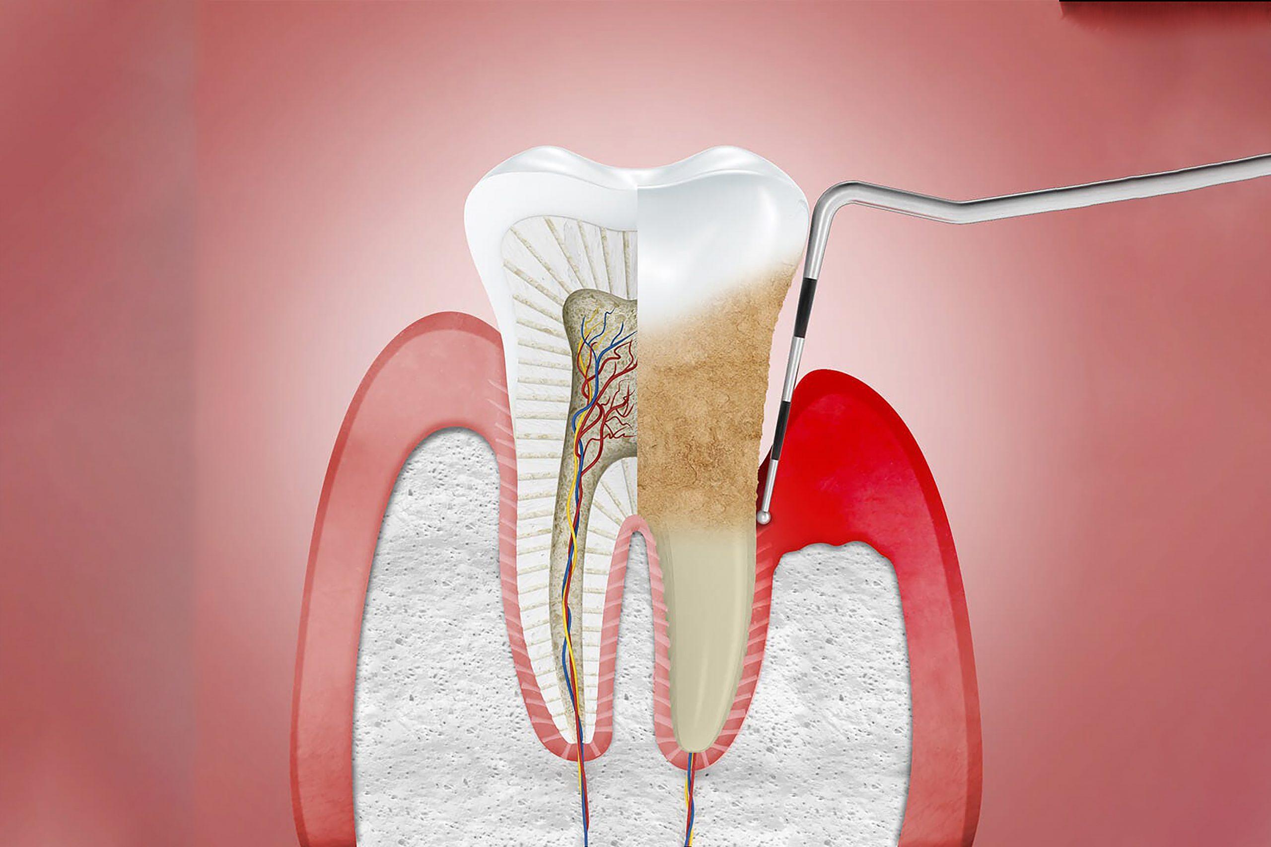 Periodontial Dental Care Brampton